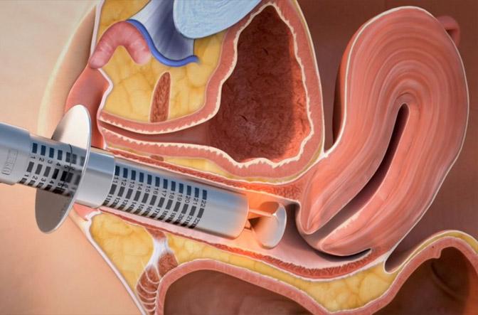 Uterine prolapse human