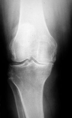 Изображение - Эндопротезирование коленного сустава травматология koleno3