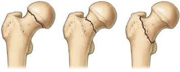 Поликлиника по замене тазобедренного сустава